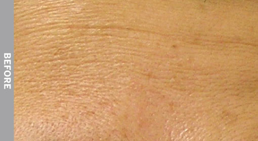 Hydrafacial Before And After Esthetic Skin Care And