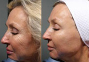 Microneedling Esthetic Skin Care And Laser Clinic Of